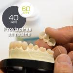 Dents provisoires en résine